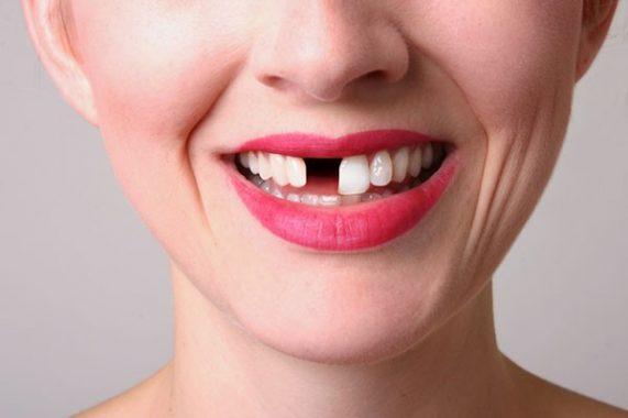 Nằm mơ thấy rụng răng tuy bình thường, nhưng nghiệm trọng hơn bạn nghĩ